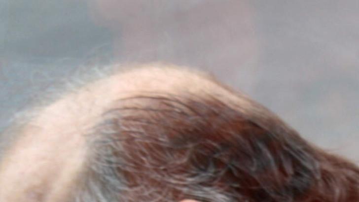 Was tun gegen lichtes Haar?